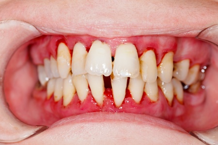 severe gum disease with loode teeth