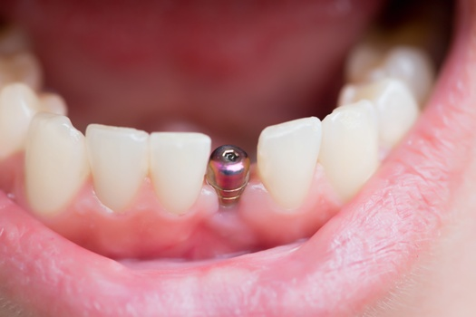 dental implant with abutment fully integrated with jawbone