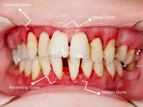 diagram of serious gum disease