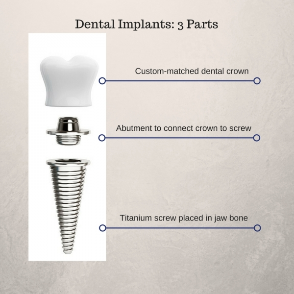 diagram of the parts of a dental implant