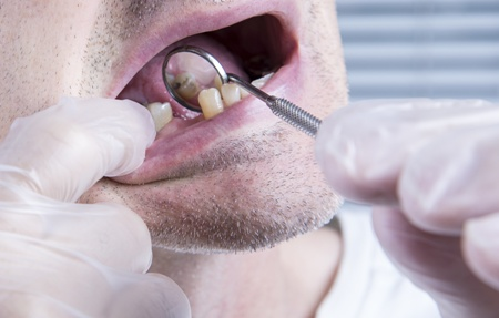 Kết quả hình ảnh cho Can make porcelain dental bridge for missing molar teeth