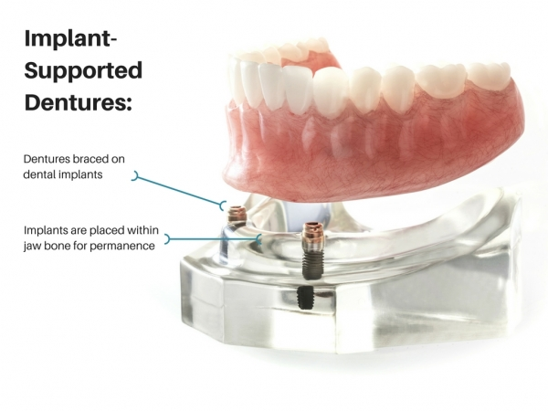 implant-supported dentures diagram