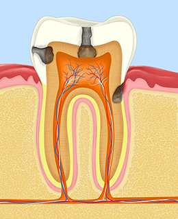 Root canals can preserve the natural tooth root in Boston, MA