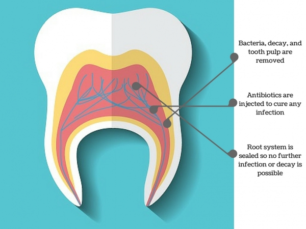 parts of the tooth, including root canal and dental pulp