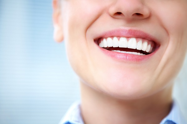 smiling woman with straight white teeth