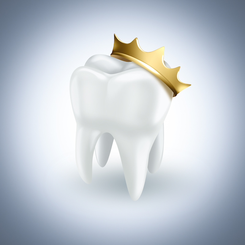 Illustration of a tooth wearing a golden crown, representing a dental crown
