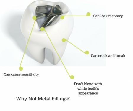 diagram pointing out disadvantages of metal fillings
