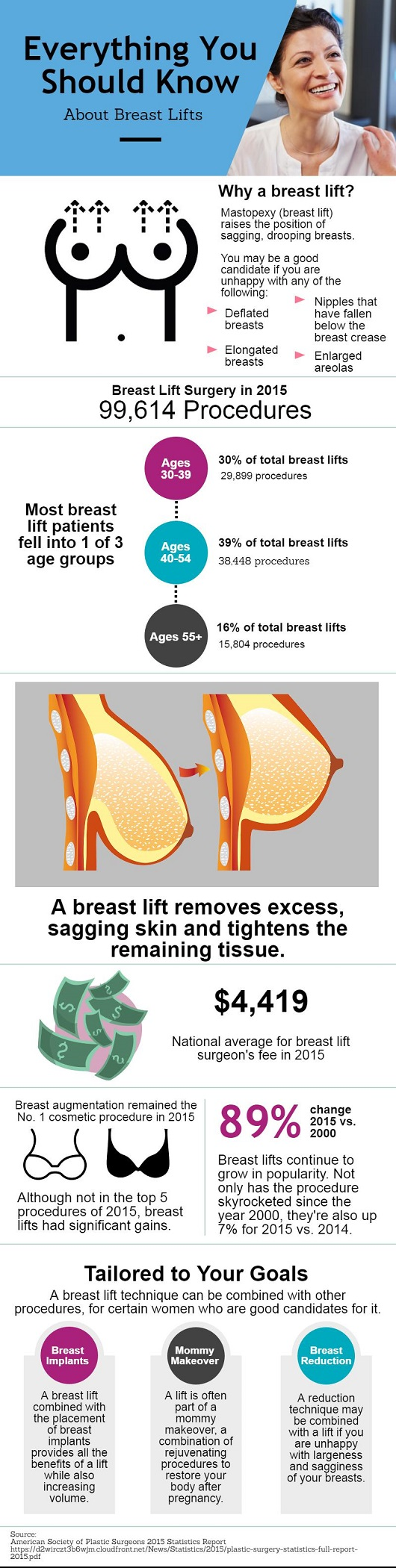 Breast Lift In Baltimore  Find Breast Lift Surgeons For -4243