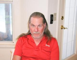 Hair Transplants Before After Photos Dr Stephen Miller Las Vegas