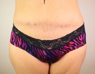 Tummy Tuck Before After Photos Dr Stephen Miller Las Vegas