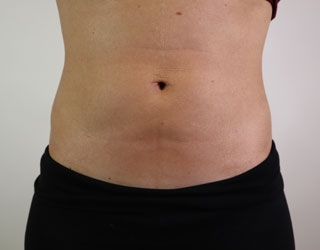 Liposuction Before After Photos Dr Stephen Miller Las Vegas