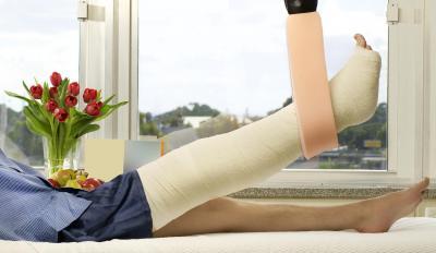 A broken leg following an accident