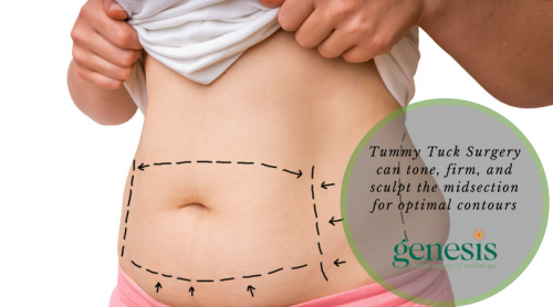 Tummy Tuck in Oklahoma City