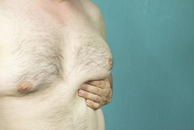 Older Male With Gynecomastia Awaiting Male Breast Reduction Surgery