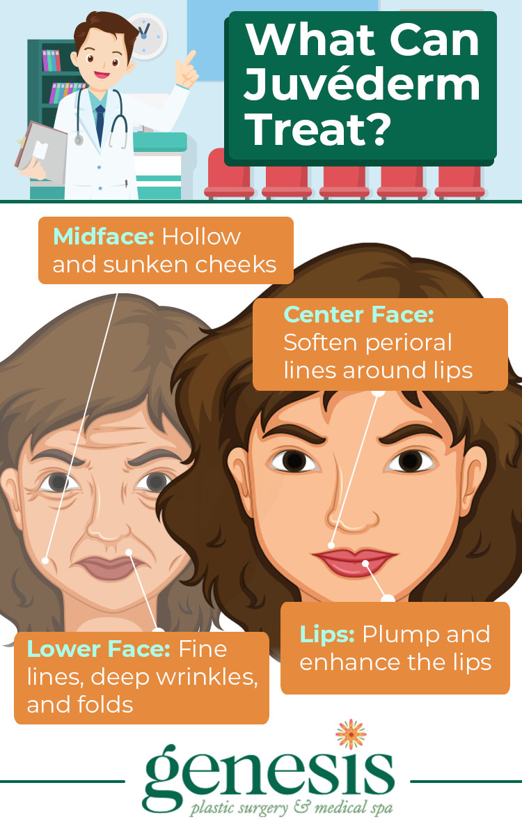 What Can Juvederm Treat Infographic