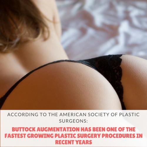 buttock augmentation facts - Oklahoma City