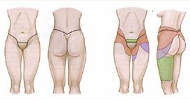 belt lipectomy diagram