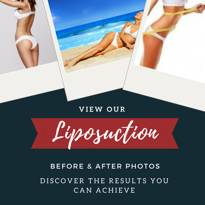 Liposuction Before and After Photos Oklahoma City