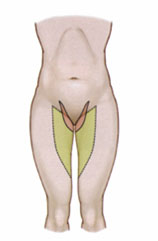 diagram of thigh lift incision