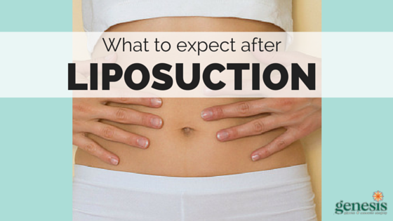 What to Expect After Liposuction - Genesis Plastic Surgery