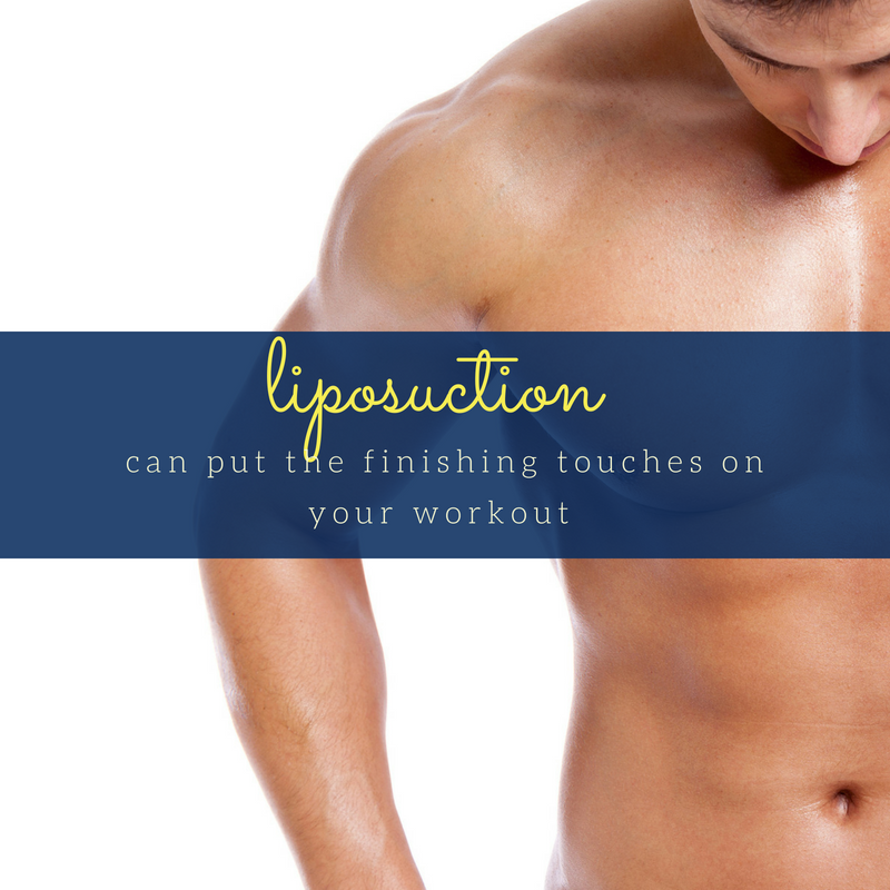 liposuction candidate in Oklahoma City