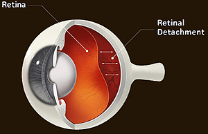 diagram of diabetic retinopathy inside the eye
