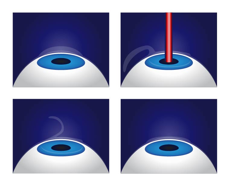 illustration of bladeless LASIK procedure - Chicago LASIK surgeon