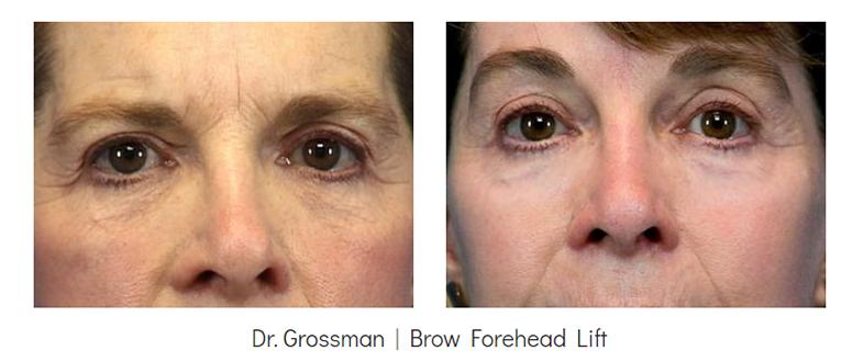 Brow Lift Before & After Surgery - Grossman | Capraro Plastic Surgery - Denver, CO