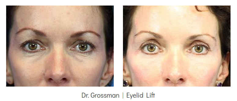 Eyelid Surgery Before & After - Grossman | Capraro Plastic Surgery in Denver