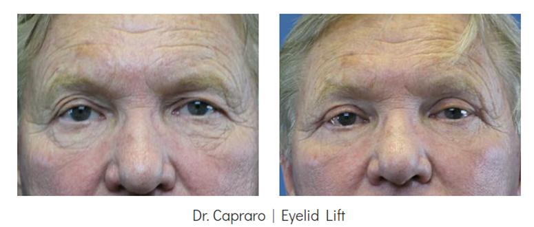 Eyelid Lift for Men Before & After - Grossman | Capraro Plastic Surgery in Denver