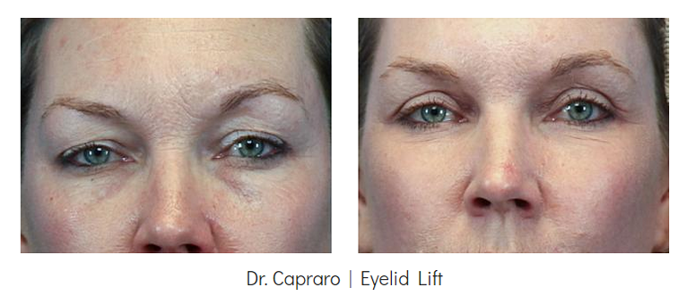Eyelid Lift Surgery Before & After | Grossman | Capraro Plastic Surgery - Denver
