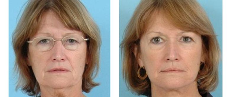 Facial Plastic Surgery Before & After - Facelift - Grossman | Capraro Plastic Surgery - Denver