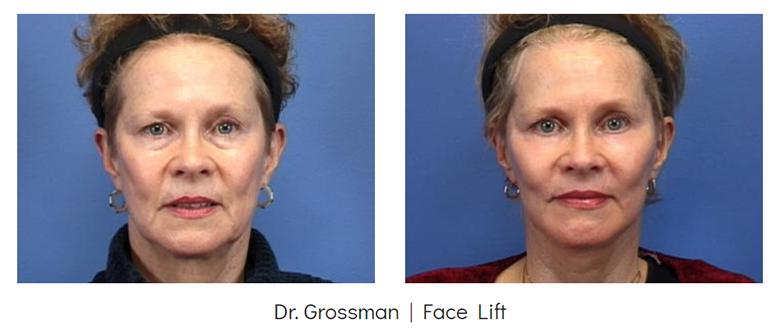 Face lift before & after | Grossman | Capraro Plastic Surgery in Denver