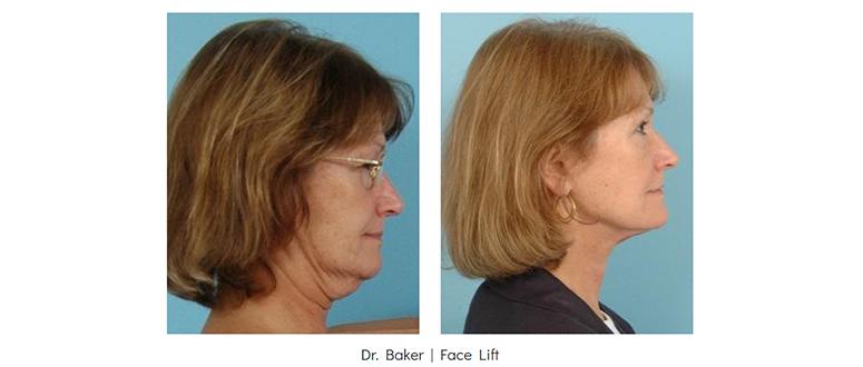 Neck lift before & After - Grossman | Capraro Plastic Surgery in Denver