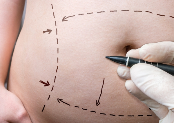 Tummy Tuck Surgery at Grossman | Capraro in Denver