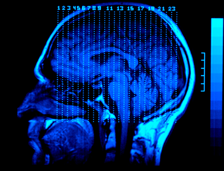 medical imaging of head injury