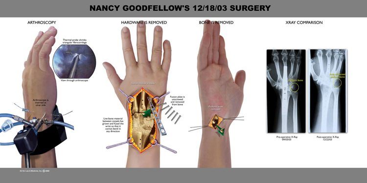 goodfellow surgery