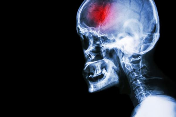 X-ray of traumatic brain injury