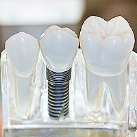 dental-implants_1.jpg