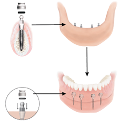 Mini Dental Implants - How they fit in the mouth