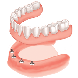 dental implants holding teeth