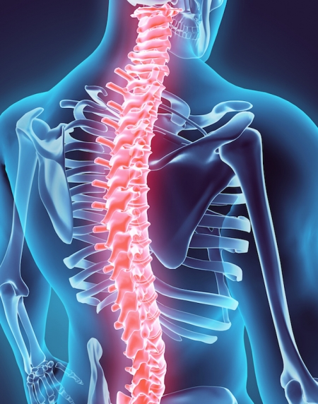ilustración de lesión de la médula espinal
