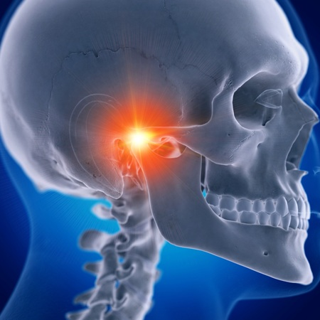 TMJ pain diagram