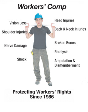 workers comp injury diagram