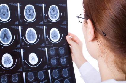 female doctor looks at CT scan images of the brain