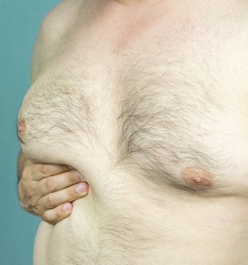man with gynecomastia holding oversized breast
