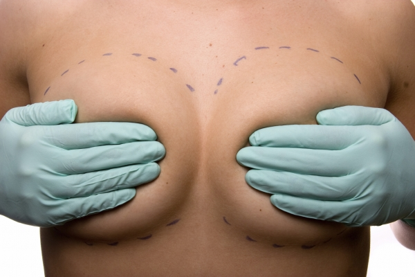 woman holding her breasts after they've been marked up for breast augmentation