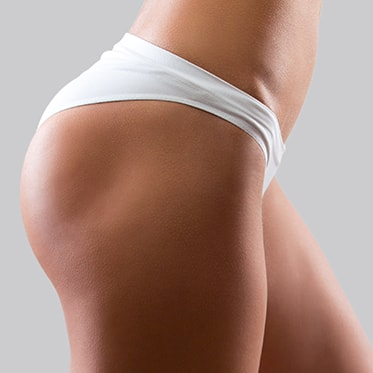 Shapely Butt and a Skinny Stomach - Butt Lifts by Dr. Omidi in Beverly Hills