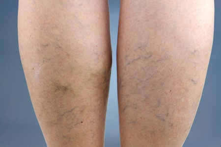 legs with prominent spider veins