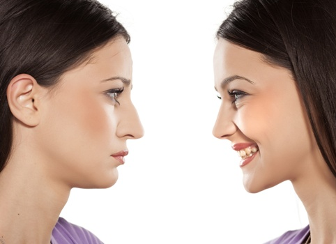 rhinoplasty results for young woman